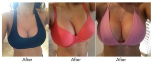 breast-enlargement-pills-creams-silverton-silverlakes-sunnyside-witswomenclinics-co-za