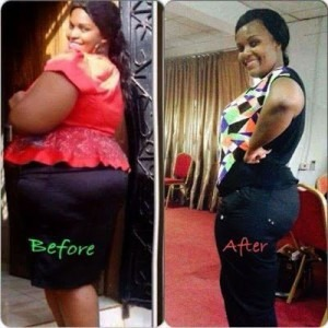 weight-loss-pretoria