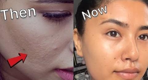 skin-whitening-cream